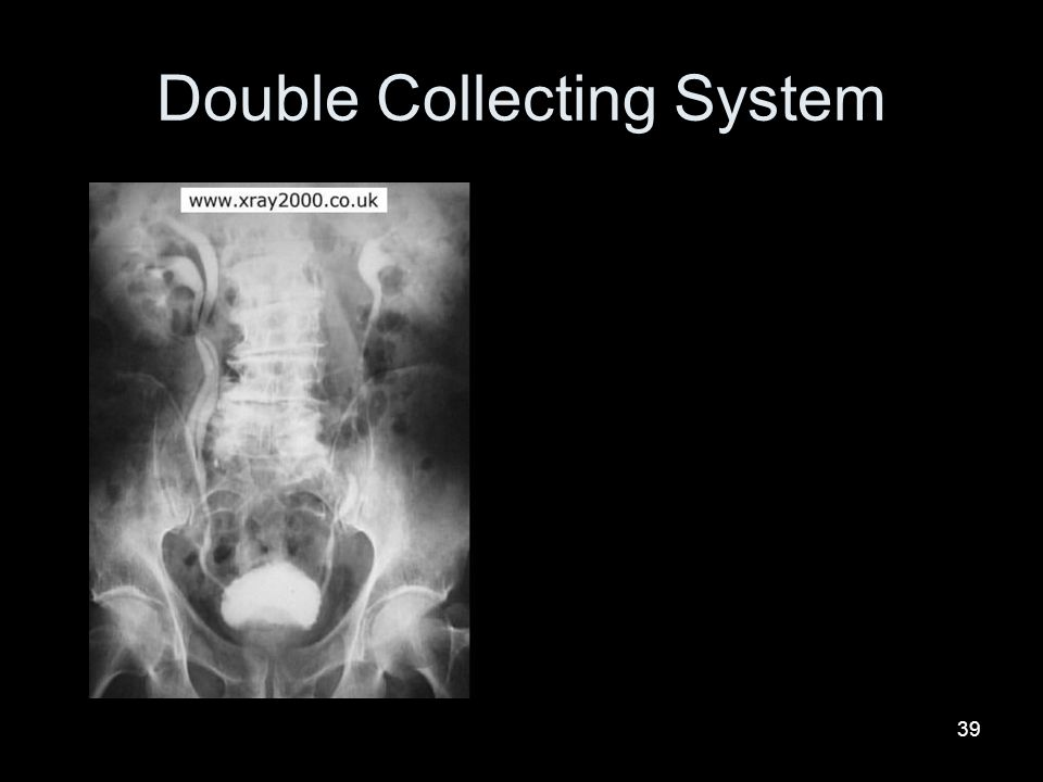 39 Double Collecting System