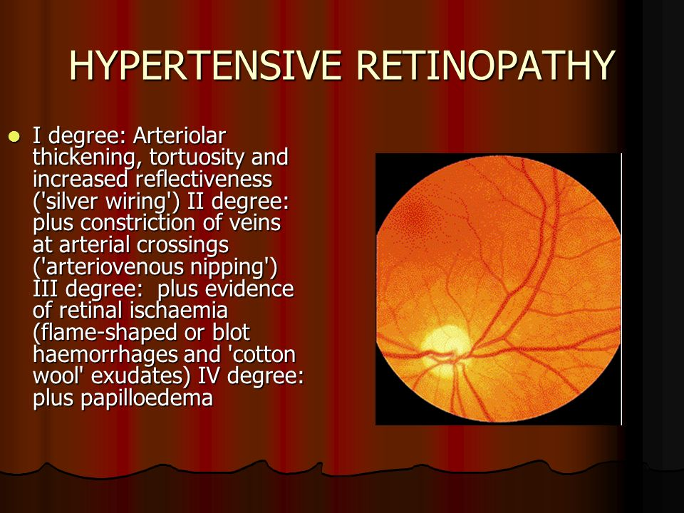 36 HYPERTENSIVE RETINOPATHY ...  sc 1 st  SlidePlayer : hypertensive retinopathy silver wiring - yogabreezes.com