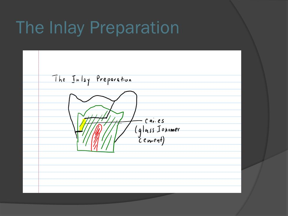The Inlay Preparation