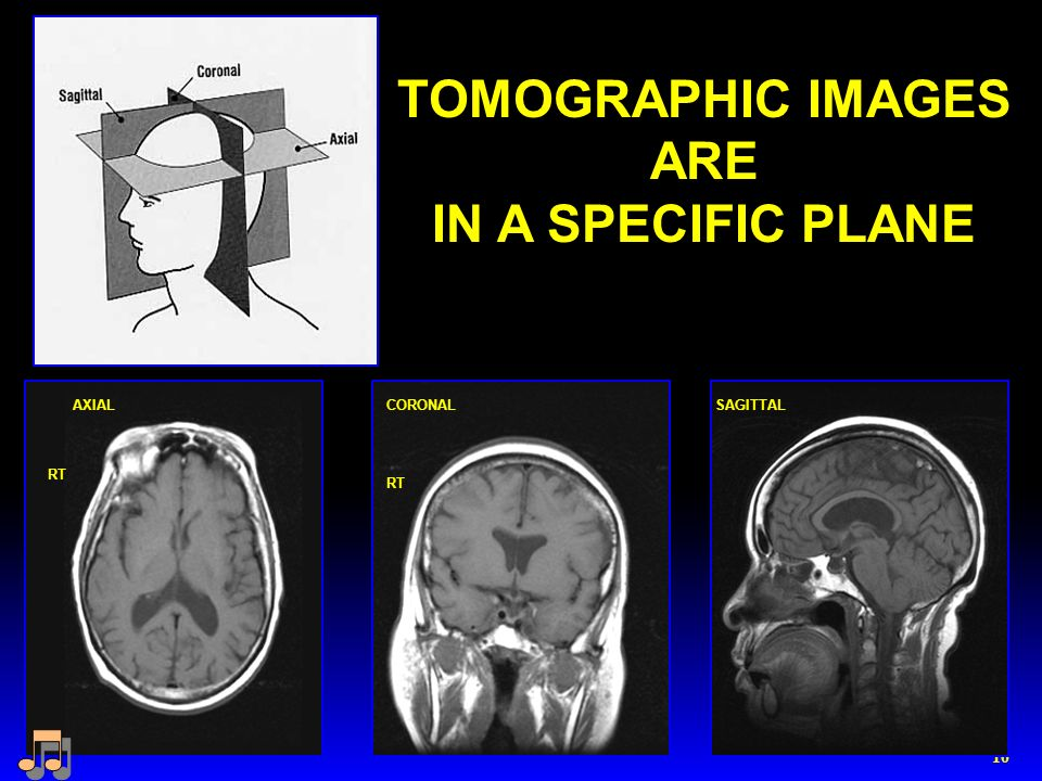 10 TOMOGRAPHIC IMAGES ARE IN A SPECIFIC PLANE SAGITTALAXIALCORONAL RT