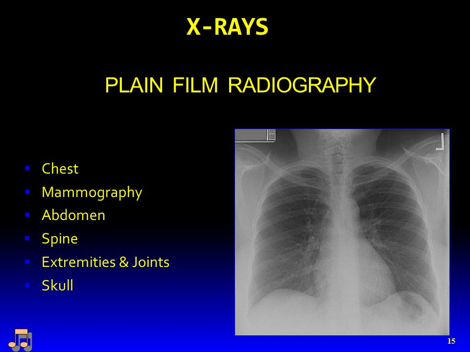 X-RAYS PLAIN FILM RADIOGRAPHY  Chest  Mammography  Abdomen  Spine  Extremities & Joints  Skull 15