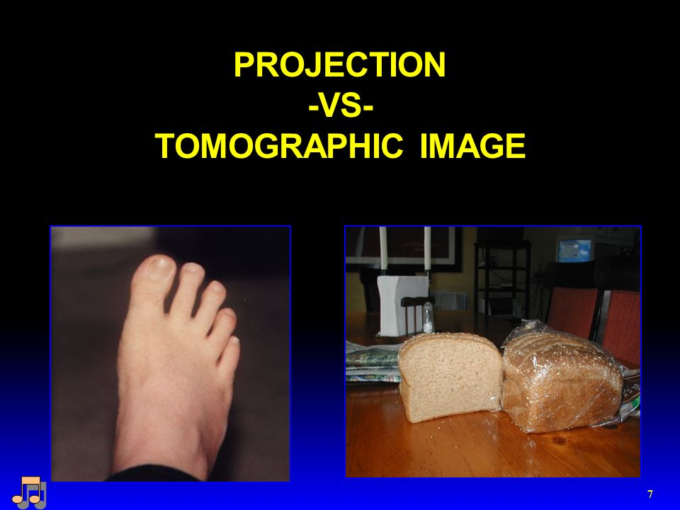 PROJECTION -VS- TOMOGRAPHIC IMAGE 7