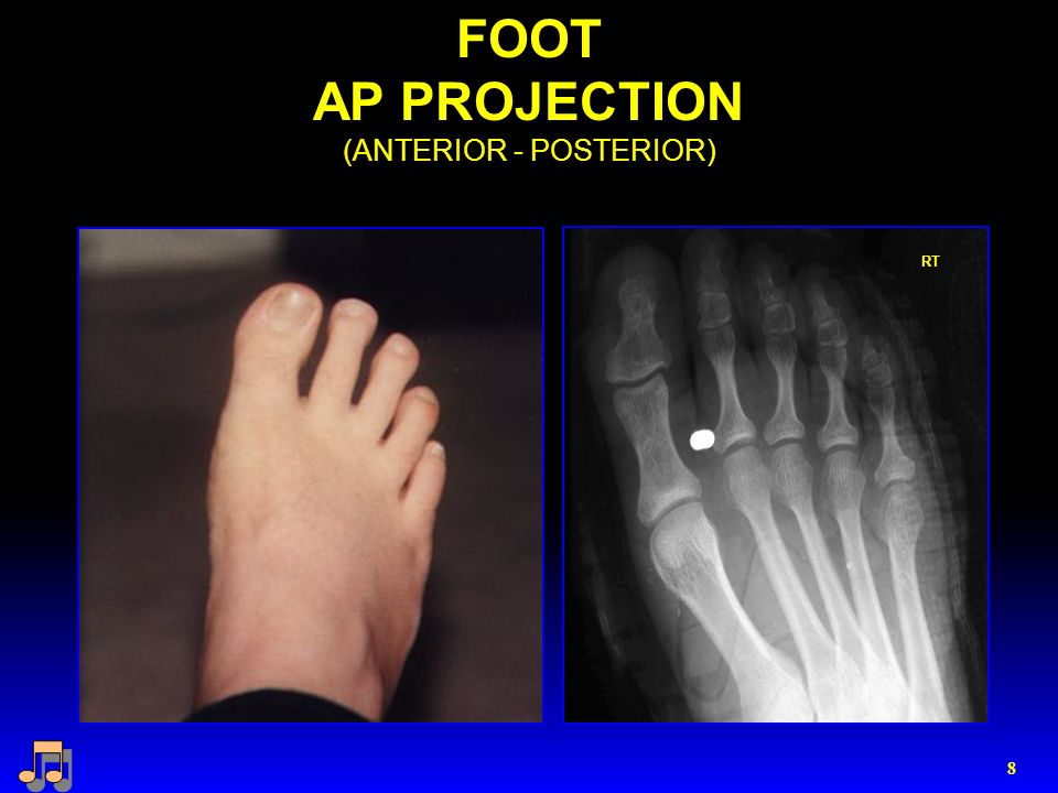 8 FOOT AP PROJECTION (ANTERIOR - POSTERIOR) RT