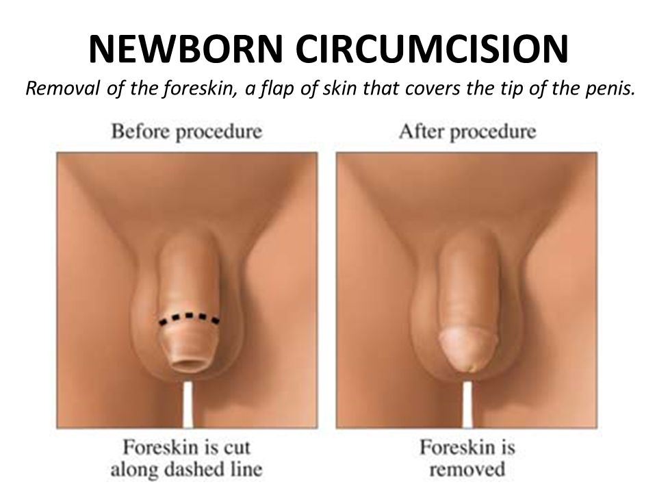 NEWBORN CIRCUMCISION Removal of the foreskin, a flap of skin that covers the tip of the penis.