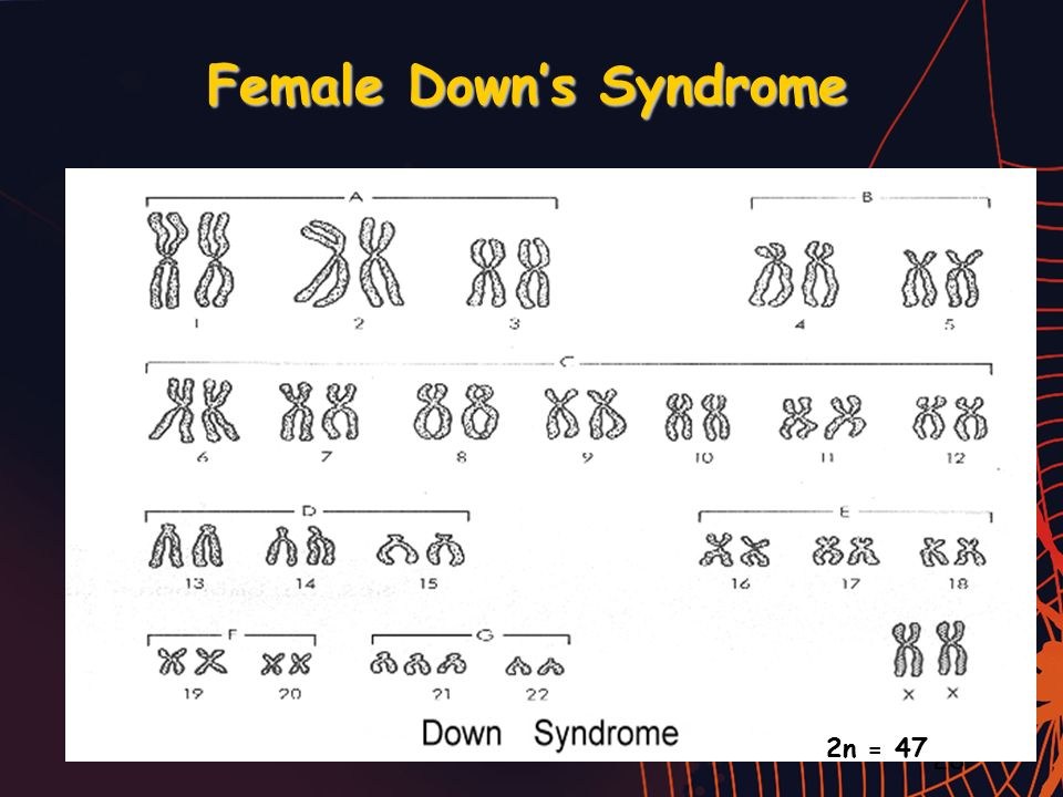 Female Down's Syndrome 28 2n = 47
