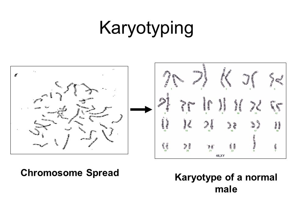 Karyotyping Karyotype of a normal male Chromosome Spread