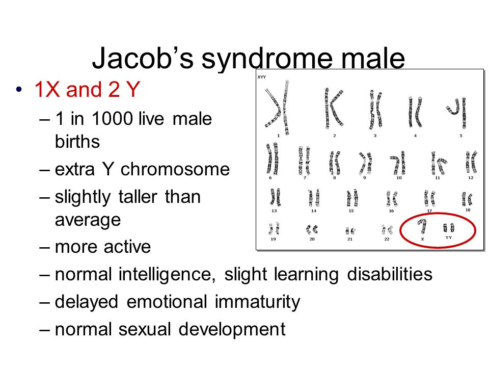 Jacob's syndrome male 1X and 2 Y –1 in 1000 live male births –extra Y chromosome –slightly taller than average –more active –normal intelligence, slight learning disabilities –delayed emotional immaturity –normal sexual development