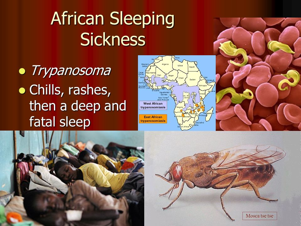 African Sleeping Sickness Trypanosoma Trypanosoma Chills, rashes, then a deep and fatal sleep Chills, rashes, then a deep and fatal sleep