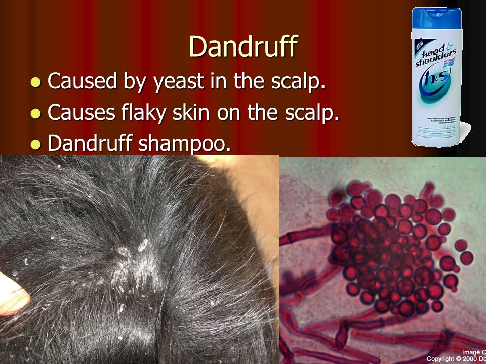 Dandruff Caused by yeast in the scalp. Caused by yeast in the scalp.
