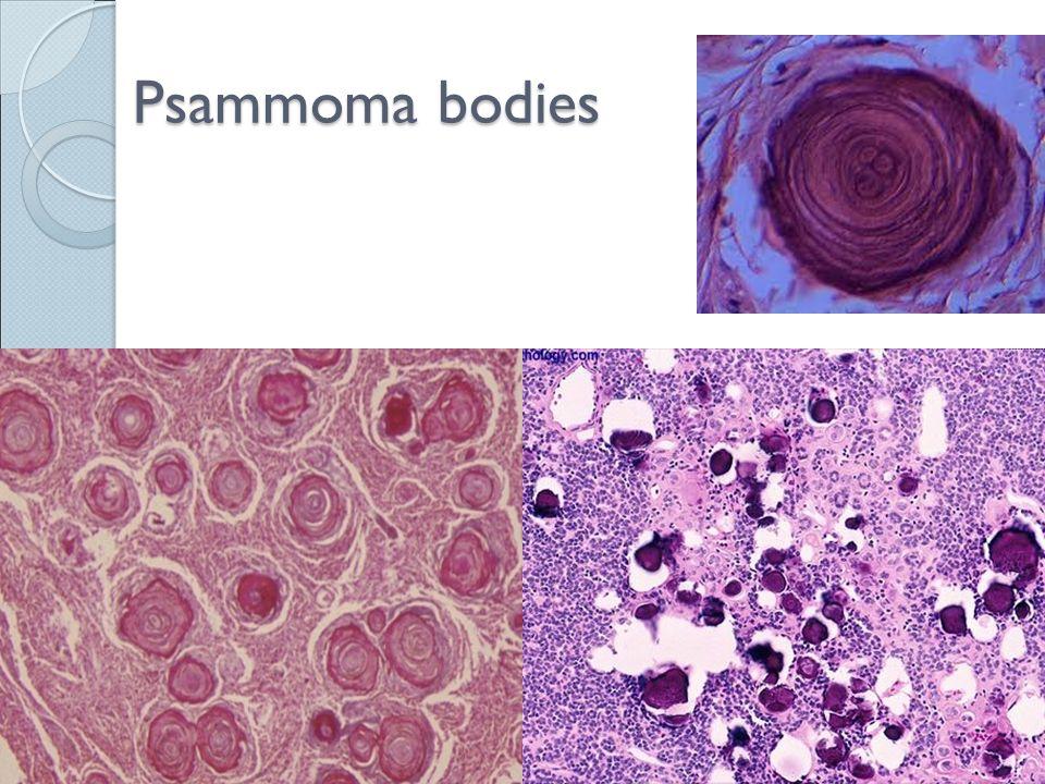 Psammoma bodies