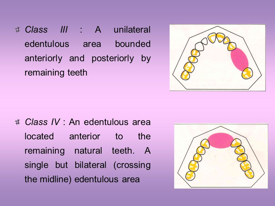 Class III : A unilateral edentulous area bounded anteriorly and posteriorly by remaining teeth Class IV : An edentulous area located anterior to the r