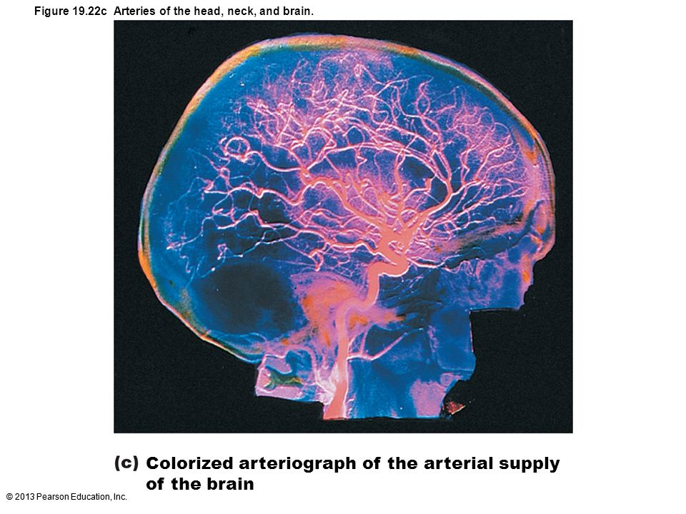 © 2013 Pearson Education, Inc. Colorized arteriograph of the arterial supply of the brain Figure 19.22c Arteries of the head, neck, and brain.