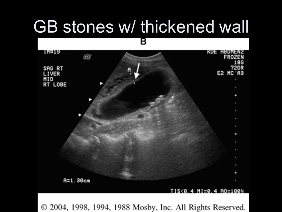 GB stones w/ thickened wall