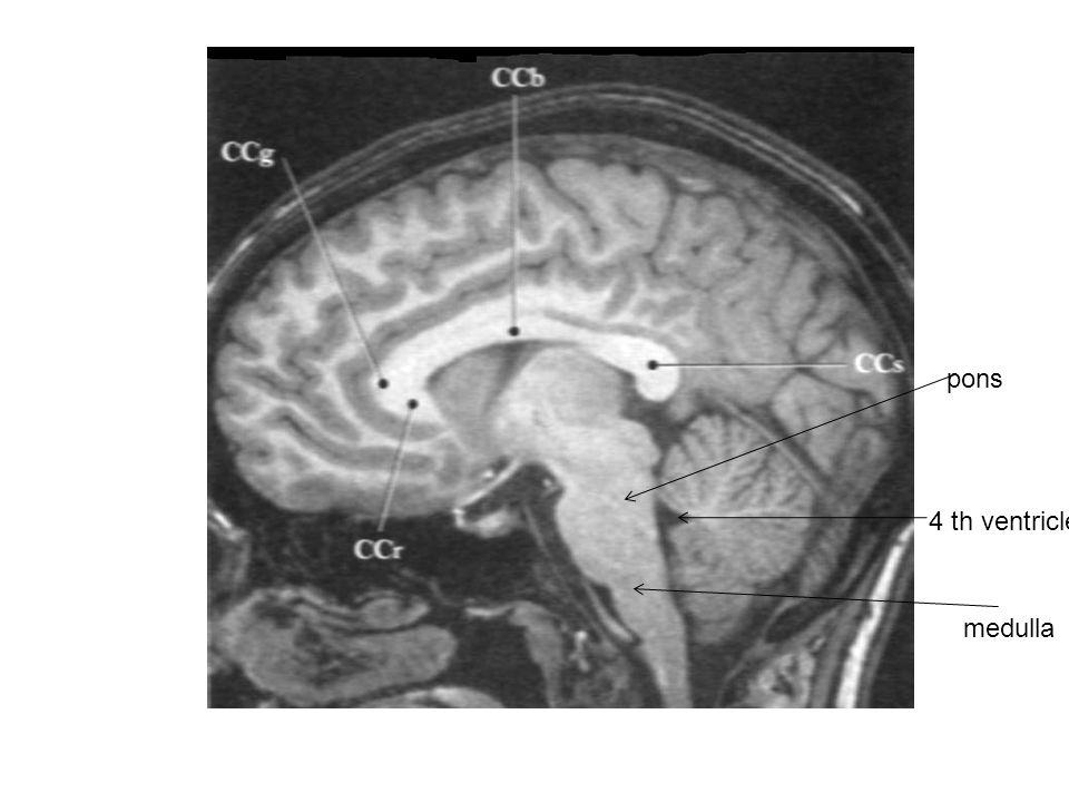 Colorful Mri Cross Sectional Anatomy Brain Sketch - Anatomy And ...