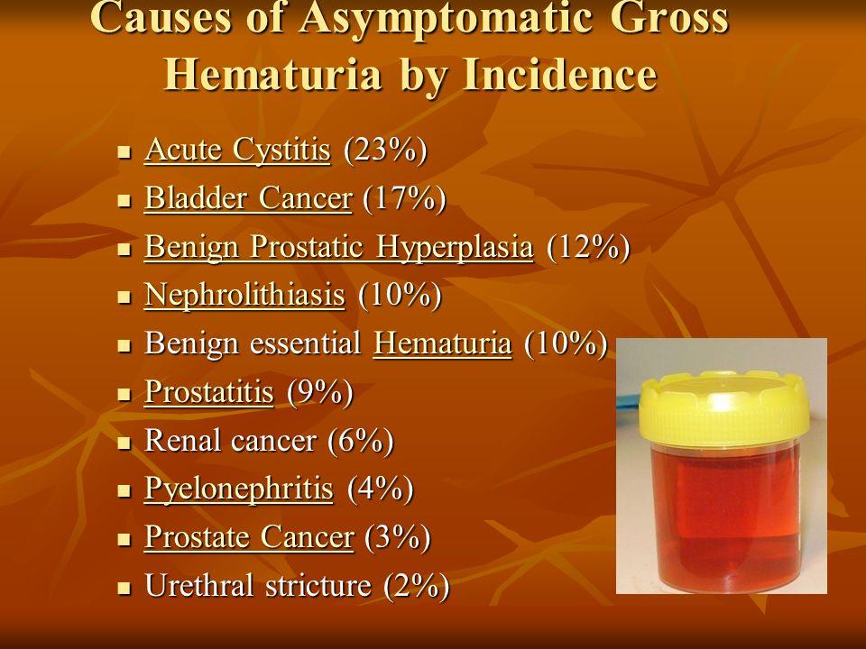 prostatitis blood in urine