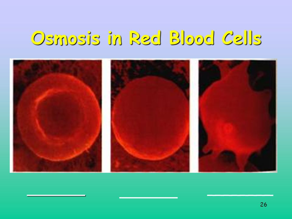 26 Osmosis in Red Blood Cells _______ _______ ________