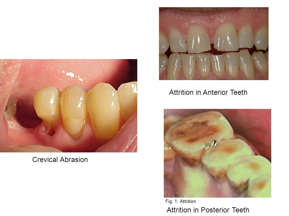Crevical Abrasion Attrition in Anterior Teeth Attrition in Posterior Teeth