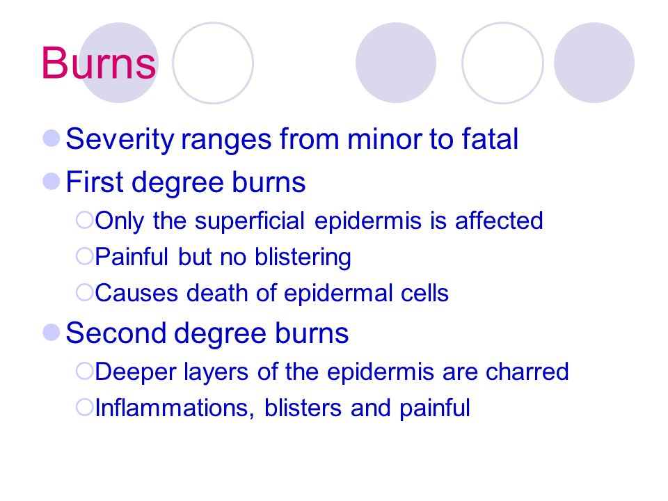 Burns Severity ranges from minor to fatal First degree burns  Only the superficial epidermis is affected  Painful but no blistering  Causes death of epidermal cells Second degree burns  Deeper layers of the epidermis are charred  Inflammations, blisters and painful