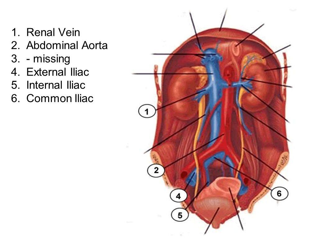 1. Renal Vein 2. Abdominal Aorta 3. - missing 4. External Iliac 5. Internal Iliac 6. Common Iliac
