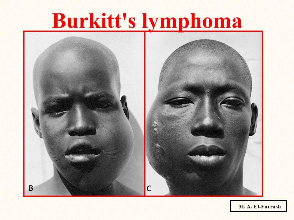 Burkitt's lymphoma M. A. El-Farrash