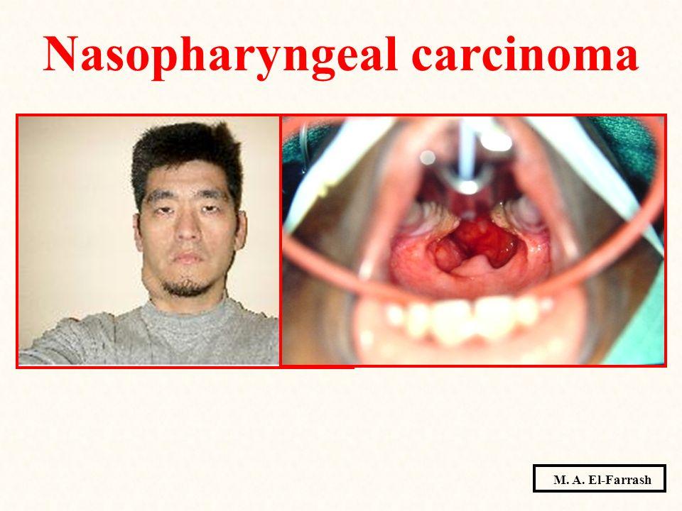 Nasopharyngeal carcinoma M. A. El-Farrash