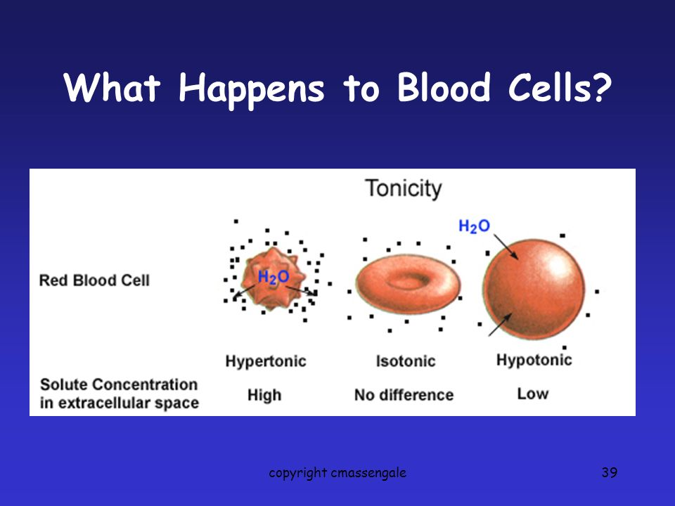 What Happens to Blood Cells copyright cmassengale39