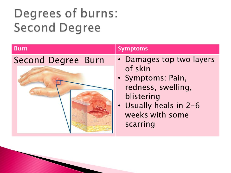 BurnSymptoms Second Degree Burn Damages top two layers of skin Symptoms: Pain, redness, swelling, blistering Usually heals in 2-6 weeks with some scarring