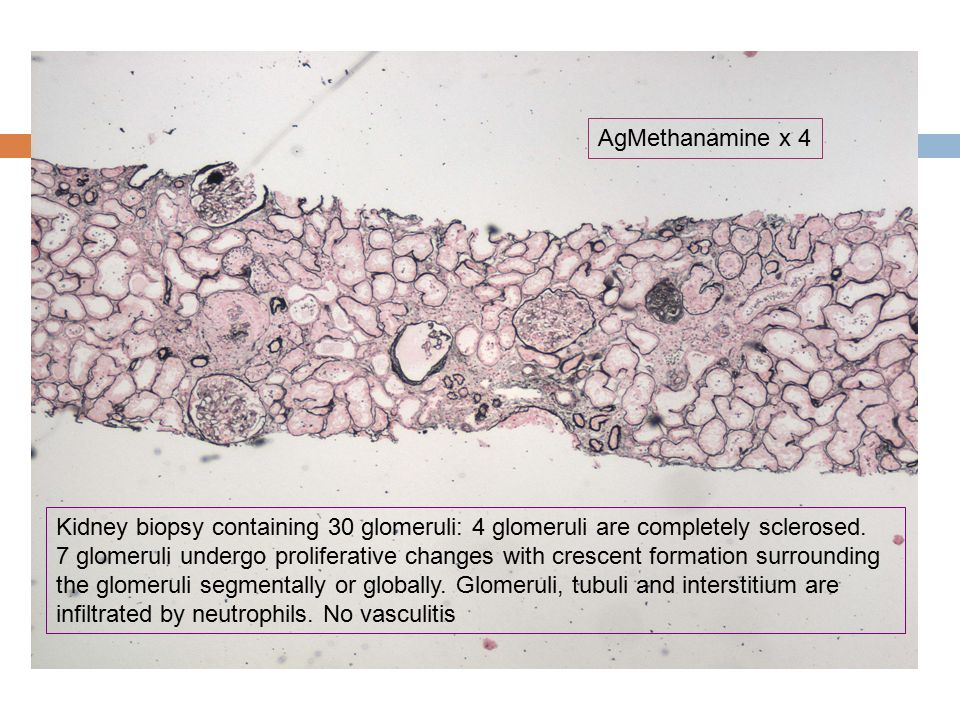 AgMethanamine x 4 Kidney biopsy containing 30 glomeruli: 4 glomeruli are completely sclerosed.