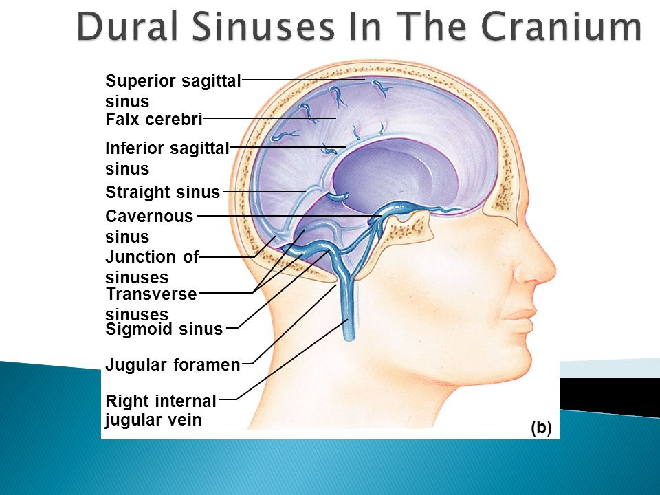 Superior sagittal sinus Falx cerebri Inferior sagittal sinus Straight sinus Cavernous sinus Junction of sinuses Transverse sinuses Jugular foramen (b)