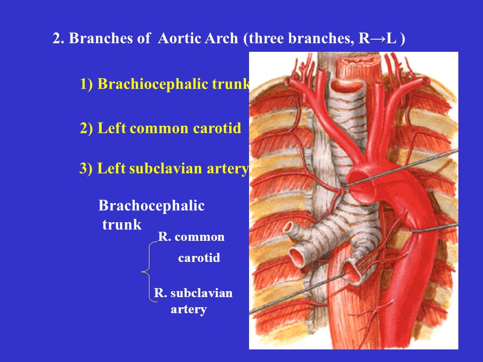 3) Left subclavian artery 2) Left common carotid 1) Brachiocephalic trunk 2.
