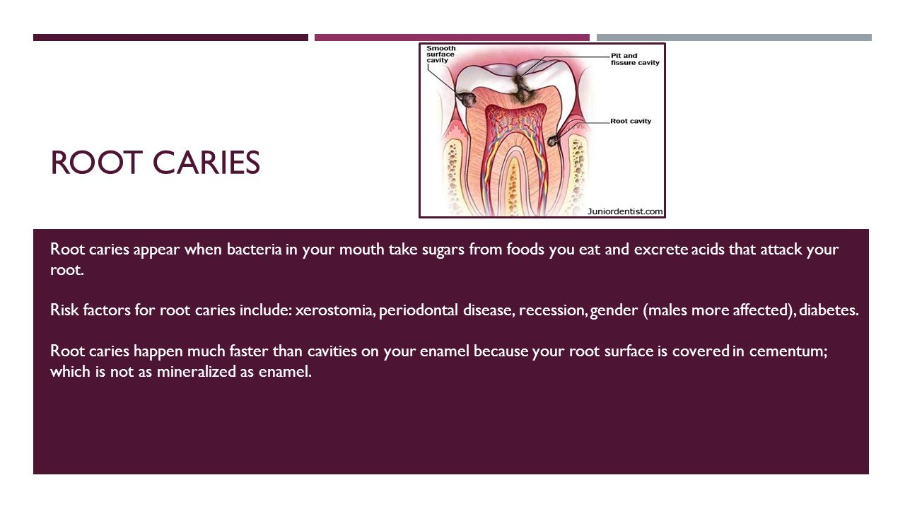 root surface caries essay See also caries, cemental (root surface) caries, chronic, n a form of caries that occurs over time and demands regular dental intervention caries, compound,.