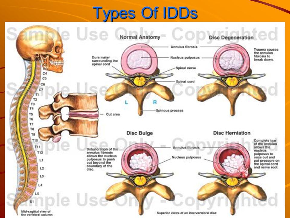 Unique Spinal Discs Anatomy Adornment - Anatomy Ideas - yunoki.info