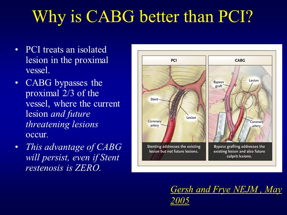 Why is CABG better than PCI. PCI treats an isolated lesion in the proximal vessel.