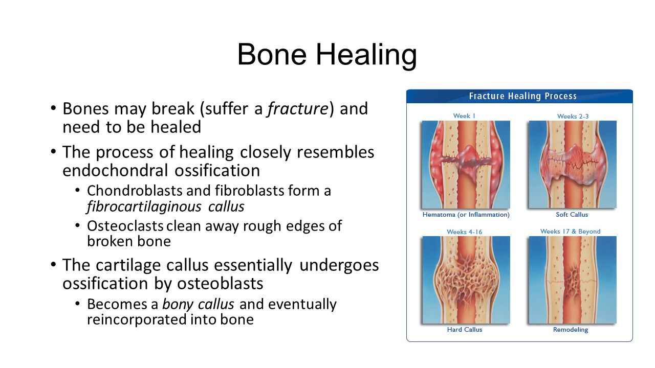 healing process of a bone fracture