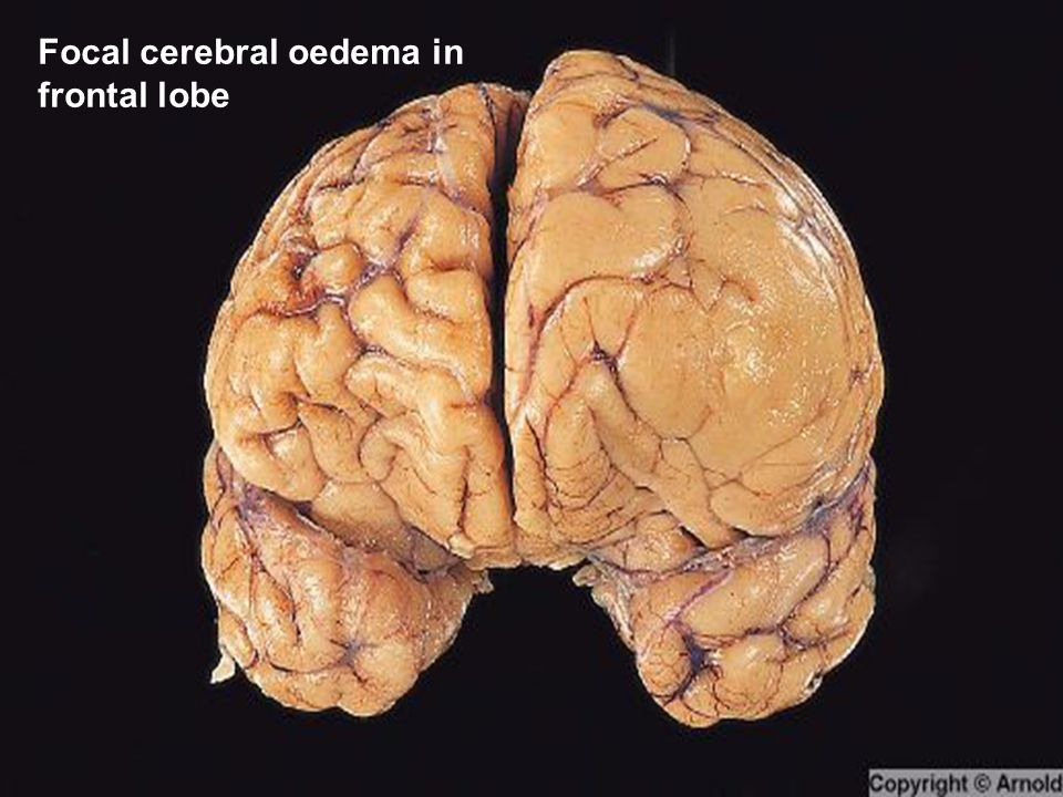 Focal cerebral oedema in frontal lobe