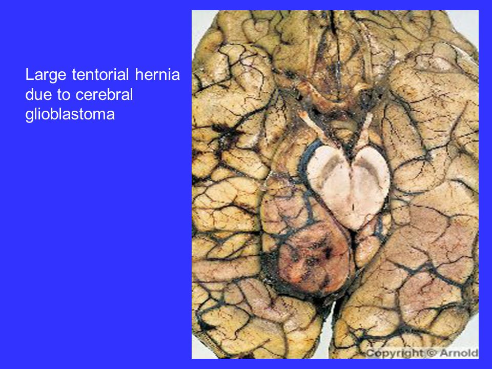 Large tentorial hernia due to cerebral glioblastoma