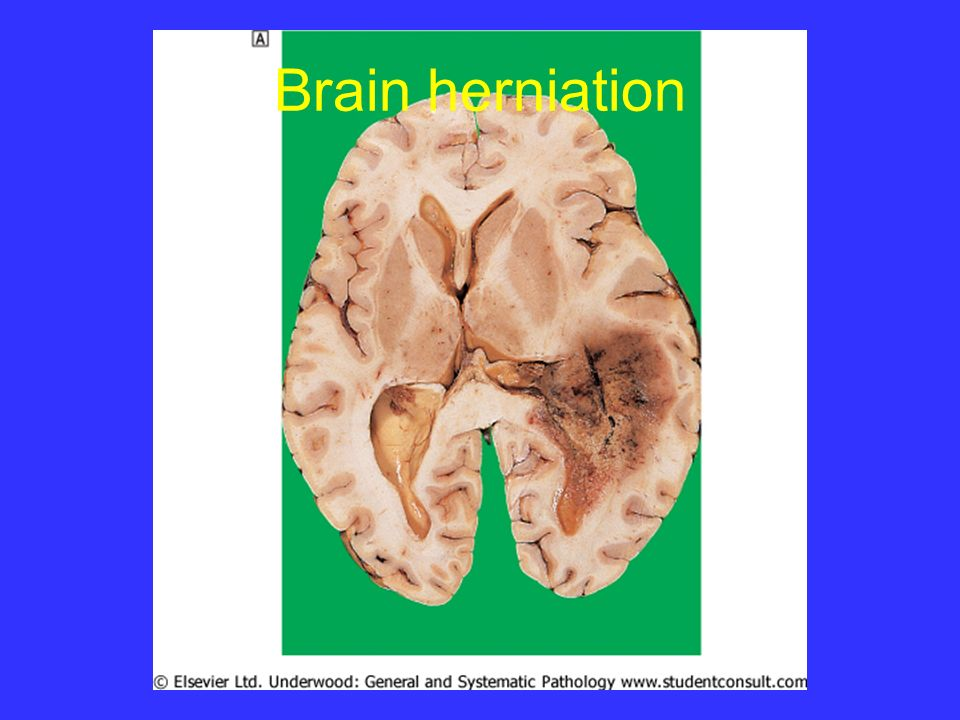 Brain herniation