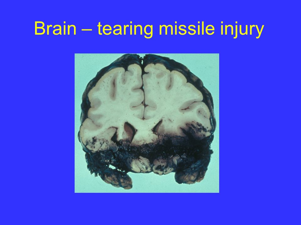Brain – tearing missile injury