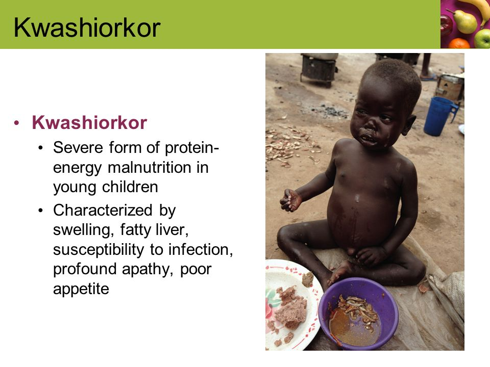 protein energy malnutrition Protein energy malnutrition (pem) is a type of disease caused due to decreased intake of food and deficient protein in the food most commonly seen in children and to the debilitated and uncared.