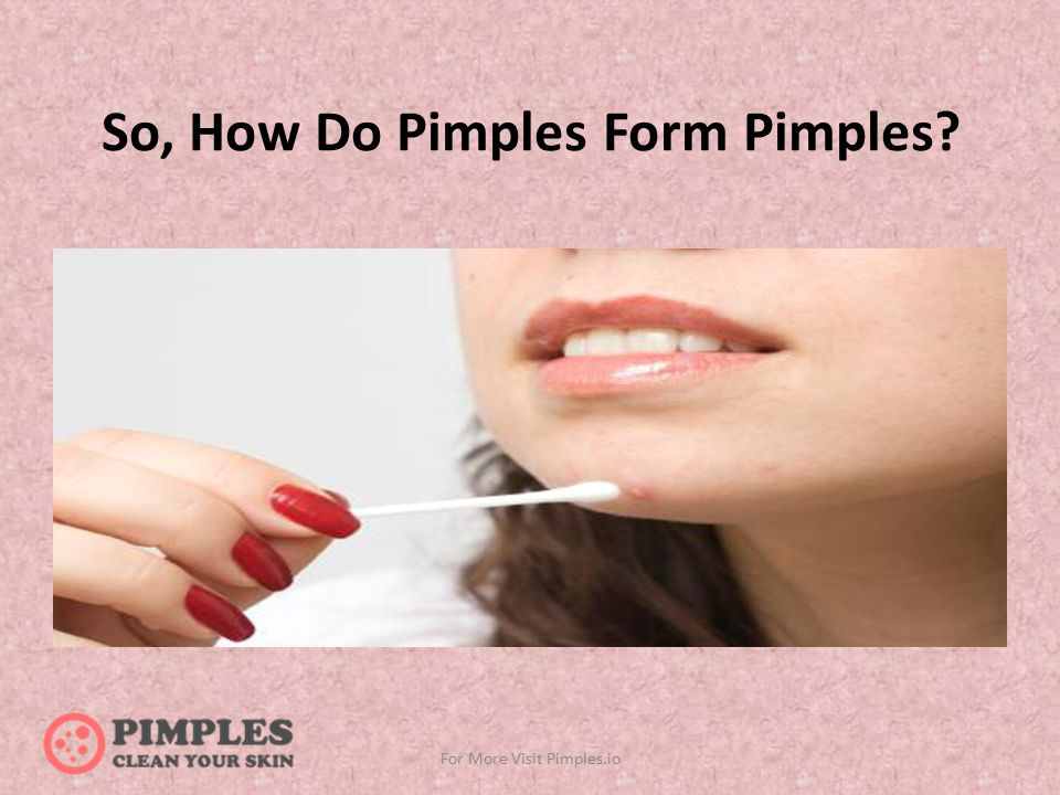 How Do Pimples Form Pimples And Its Prevention For More Visit ...