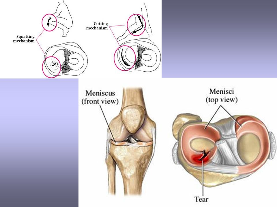 Chapter 16 the knee and related structures complex joint that 20 care immediate care price if the knee is not locked but indications of a tear are present further diagnostic testing may be required treatment ccuart Gallery