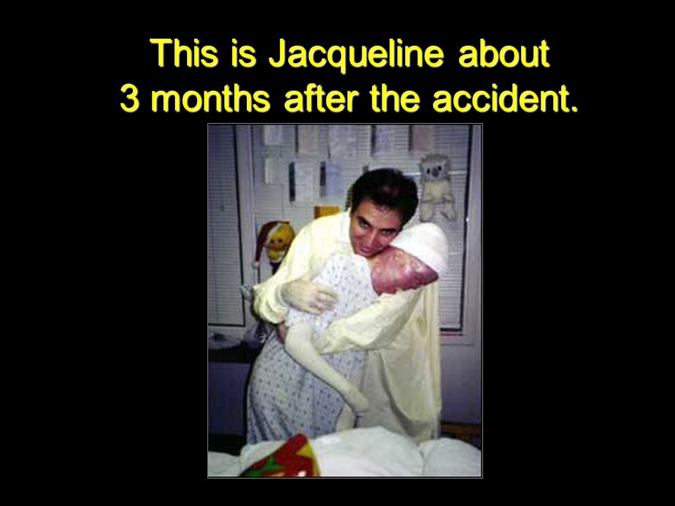 This is Jacqueline about 3 months after the accident.