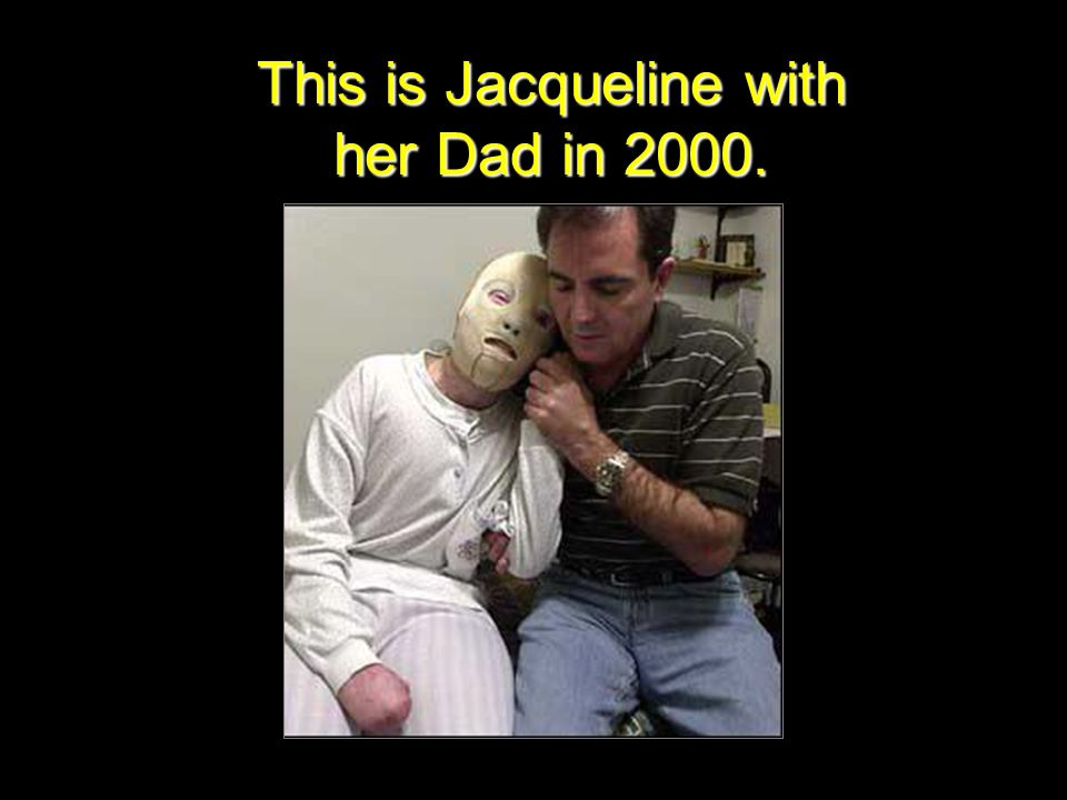 This is Jacqueline with her Dad in 2000.