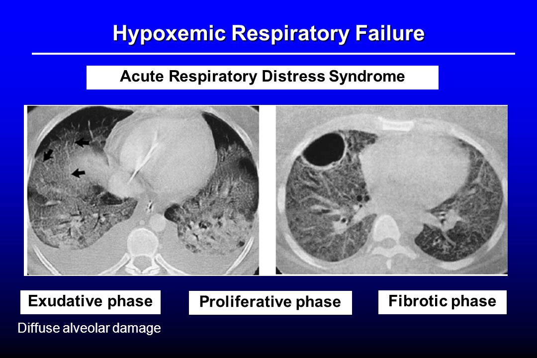 respiratory ards Special communication online first acute respiratory distress syndrome the berlin definition the ards definition task forcev alid and reliable defini.