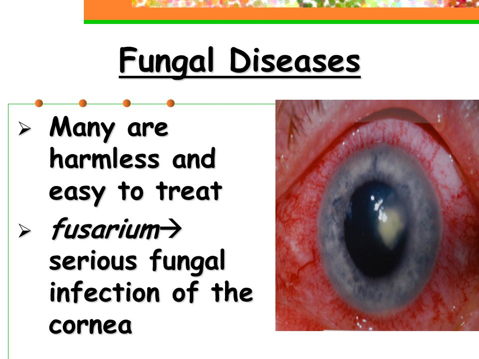 Fungal Diseases  Many are harmless and easy to treat  fusarium  serious fungal infection of the cornea