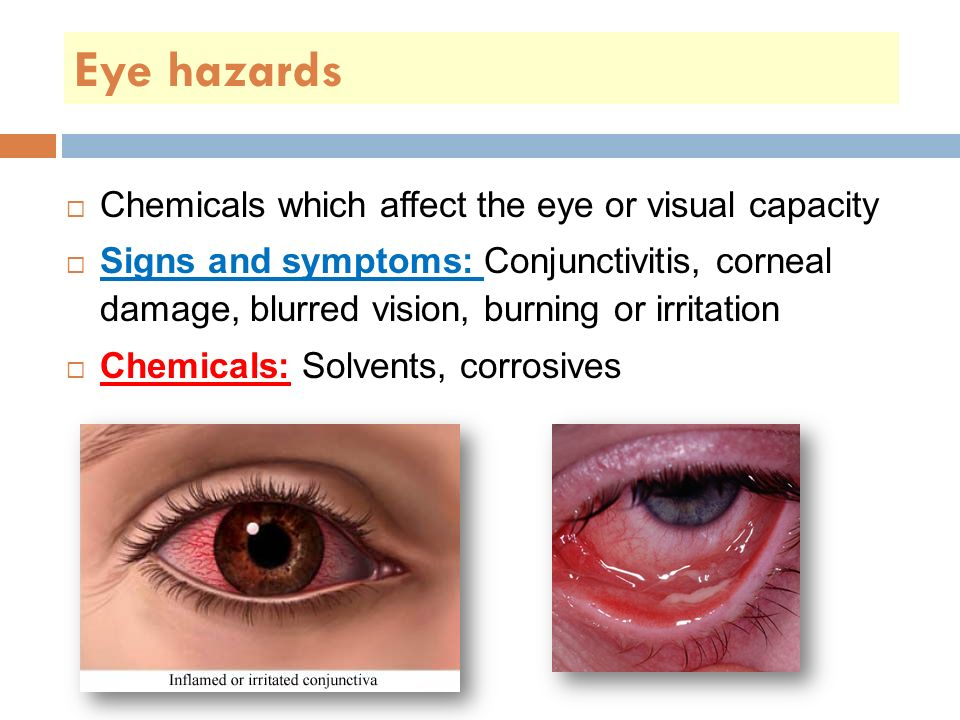 Eye hazards  Chemicals which affect the eye or visual capacity  Signs and symptoms: Conjunctivitis, corneal damage, blurred vision, burning or irritation  Chemicals: Solvents, corrosives