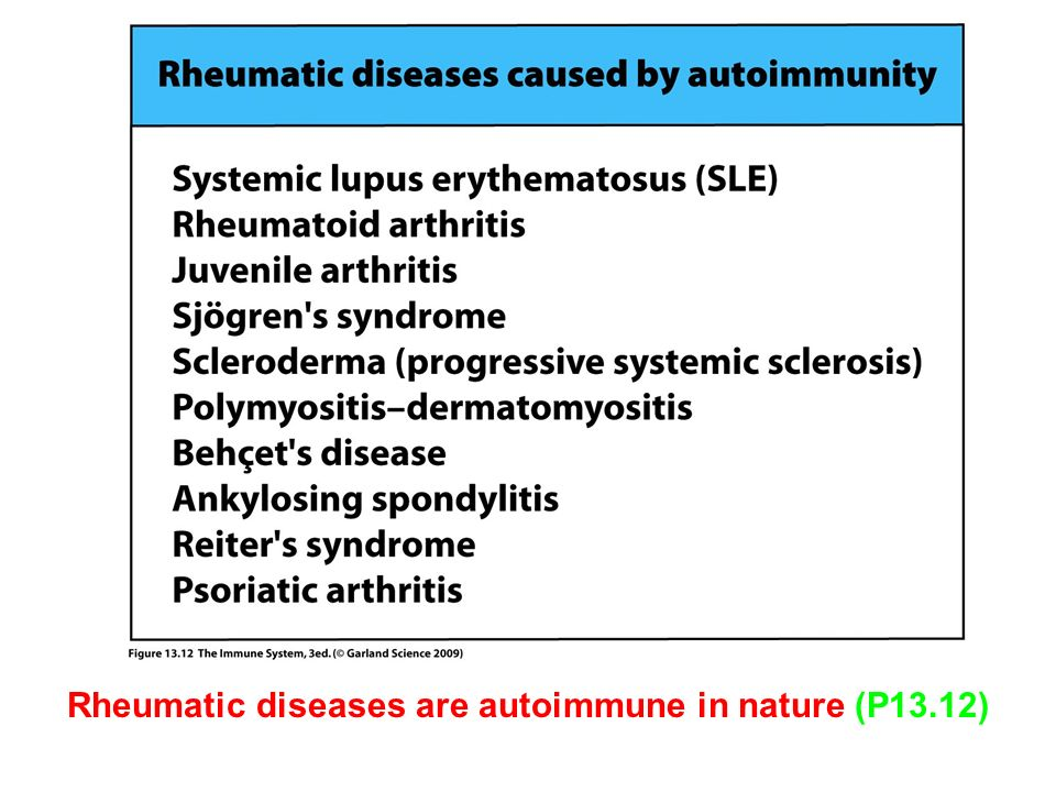 Rheumatic diseases are autoimmune in nature (P13.12)