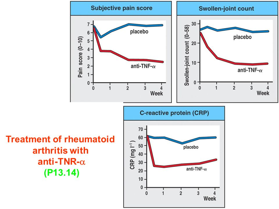Figure Treatment of rheumatoid arthritis with anti-TNR-  (P13.14)