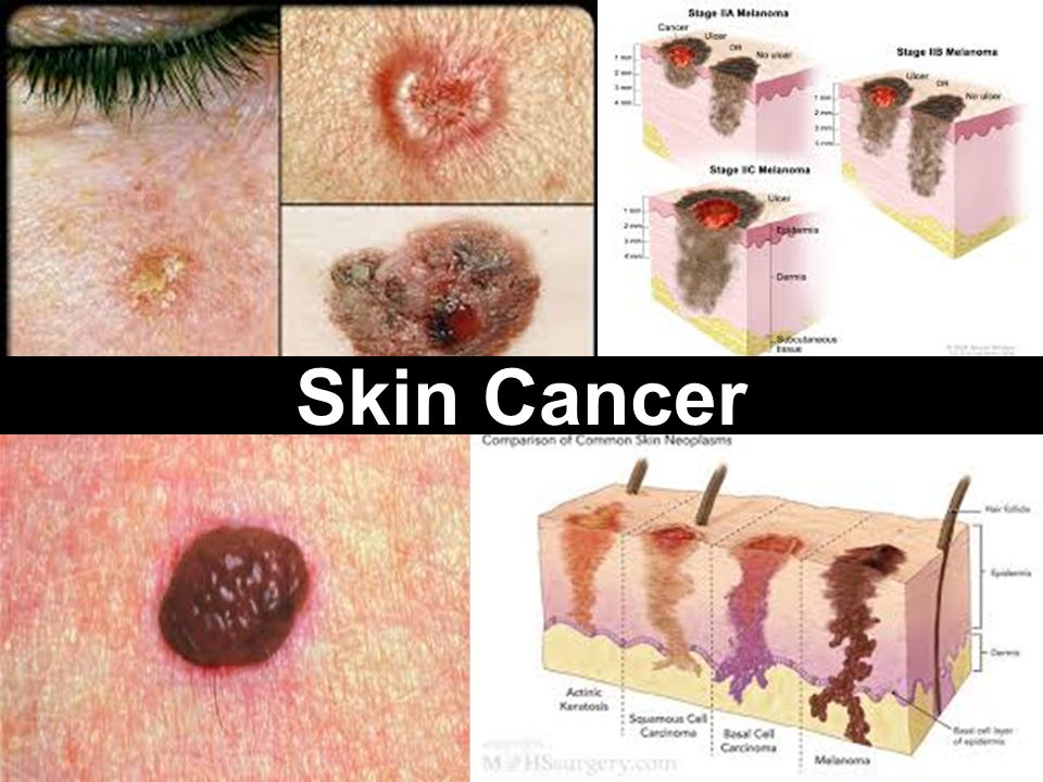 skin cancer. 2 main types of skin cancer basal and squamous cell, Skeleton