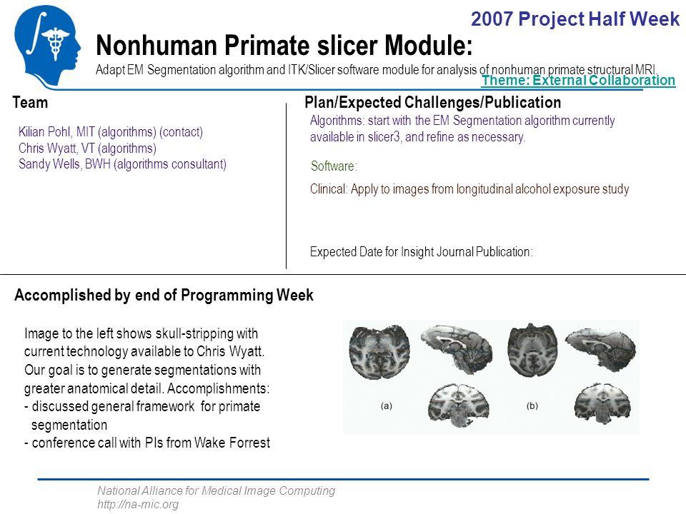 National Alliance for Medical Image Computing http://na-mic.org Nonhuman Primate slicer Module: Adapt EM Segmentation algorithm and ITK/Slicer software module for analysis of nonhuman primate structural MRI.